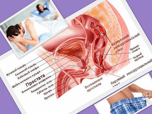 Связь геморроя и простатита